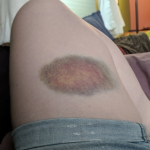 the bruise i got from falling off my bicycle in june